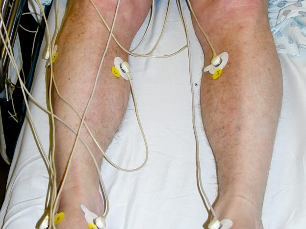 Medicare Rules for Transcutaneous Oximetry (1.0 hour) course image
